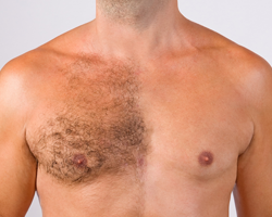 Mens-Permanent-Hair-Removal